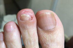 厚くなった爪のケア